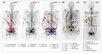 From The evolutionary history of lethal metastatic prostate cancer, Gundem et al, Nature, 520, 353–357 (2015). Metastasis-to-metastasis seeding occurs either by a linear or by a branching pattern of spread. a–c, Body maps show the seeding of all tumour sites from A22 (a), A21 (b) and A24 (c). Seeding events are represented with arrows, with double-heads when seeding could be in either direction. When the sequence of events may be ordered from the acquisition of mutations, arrows are numbered chronologically. Subclones on branching clonal lineages are labelled with the same number but with different letters, for example, 4a & 4b.