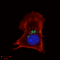 Orientia tsutsugamushi bacteria (green) inside a mouse fibroblast cell (red) 50 minutes after infection.